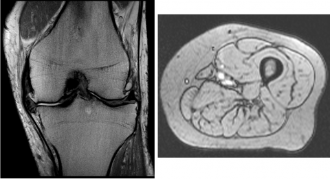 Musculoskeletal & Whole Body MRI