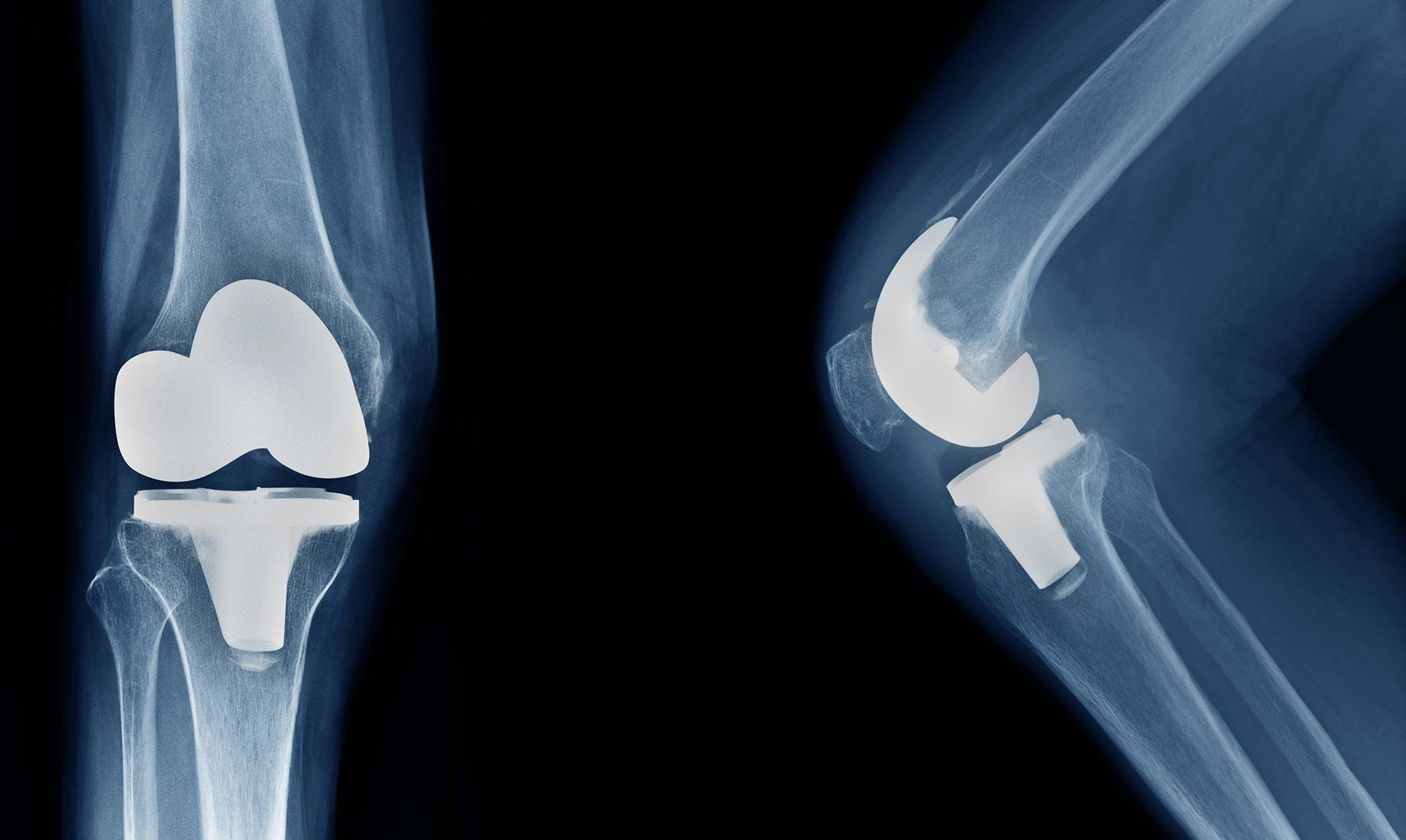 X-ray of knee implants.